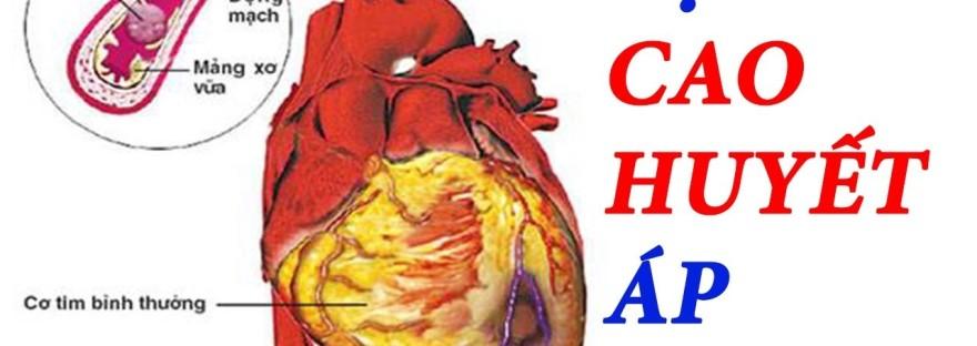 Nguyên docủa căn bệnh huyết áp cao mà hiếm ai biết